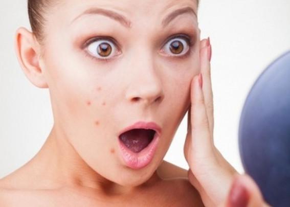 Review hành trình vịt hóa thiên nga với kem trị mụn Sakura Acne Clearing Cream