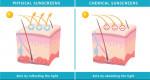 Nên lựa chọn kem chống nắng vật lý hay chống nắng hóa học?