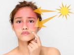 """""""Bất ngờ"""" với 5 cách chống nắng HIỆU QUẢ NHẤT từ thiên nhiên"""