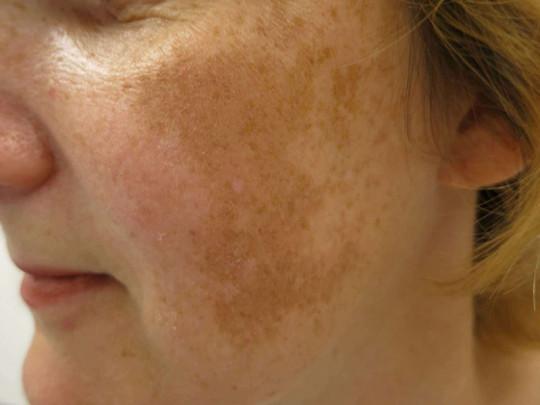 Sẹo rỗ là gì? 13 Phương pháp điều trị sẹo rỗ hiệu quả nhất hiện nay