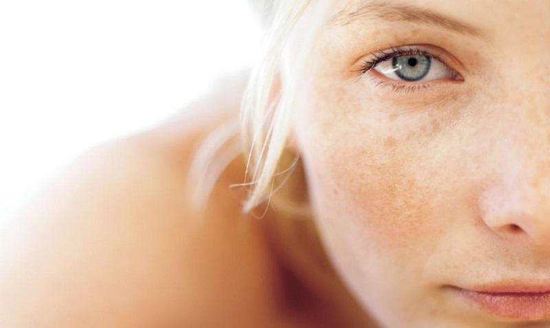 để giải quyết vấn đề sạm nám da phải mất rất nhiều thời gian và công sức