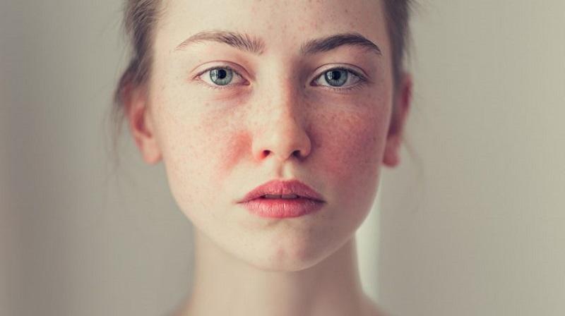 sử dụng hydroquinone có thể gây ra tác dụng phụ như ửng đỏ rối loạn sắc tố