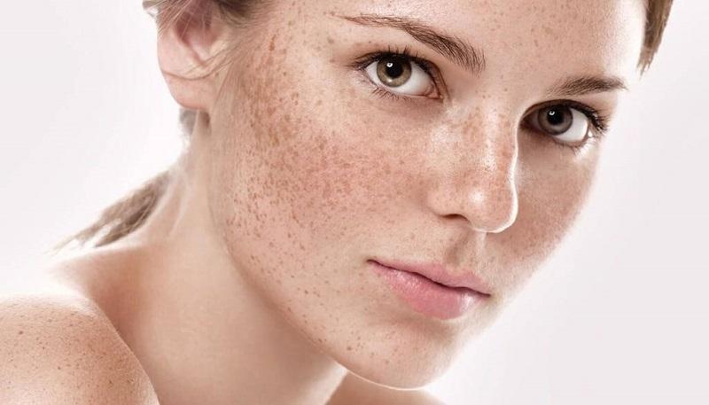 tranexamic acid giúp ức chế melanin tạo nên các sắc tố da gây ra nám da